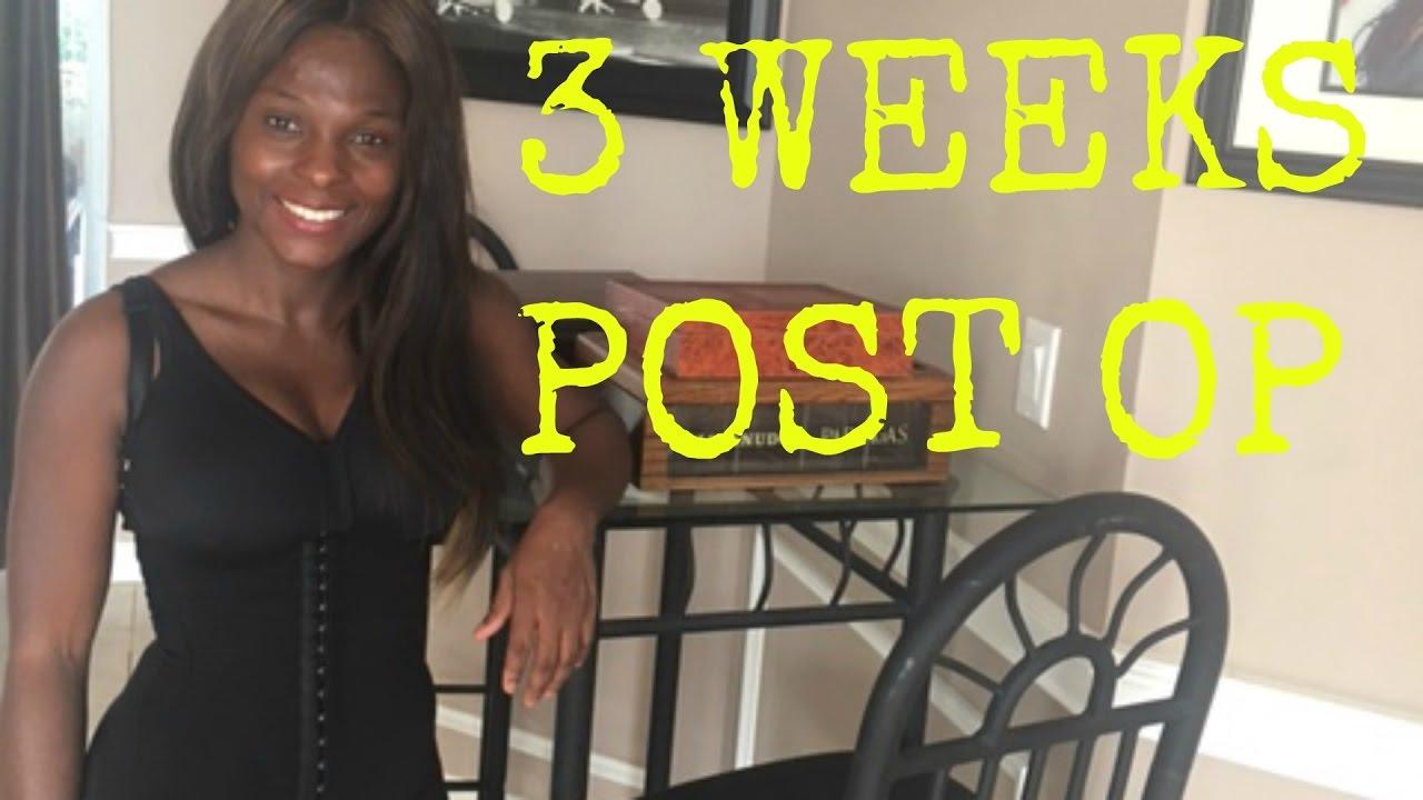 3 Weeks Post Op Recovery Plastic Surgerytummy Tuck -5978