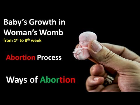 Baby's Growth in woman's womb from 1st week to 8 week .Ways of Abortion.Ambition vs Abortion