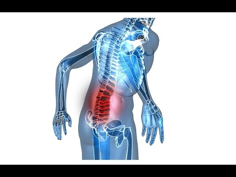 What To Do When You Strain Your Lower Back