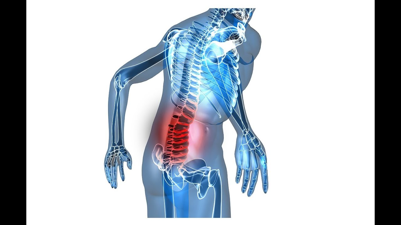 What To Do When You Strain Your Lower Back - YouTube