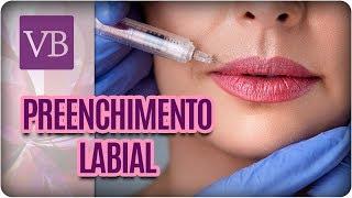Preenchimento Labial - Você Bonita (28/11/17)