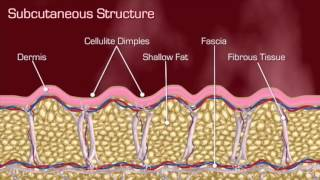 Cellfina™ System is the only rimozione cellulite www.drurtisclinic.com