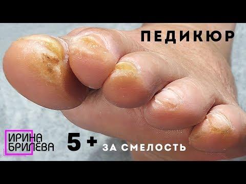 НЕ ДЛЯ СЛАБОНЕРВНЫХ педикюр!!! 😱 Возрастные ножки тоже хотят красоты