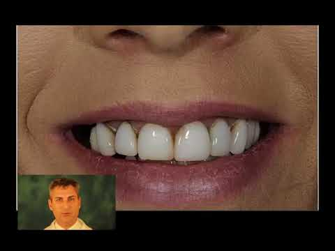 Can I Replace Decayed And Broken Porcelain Veneers?