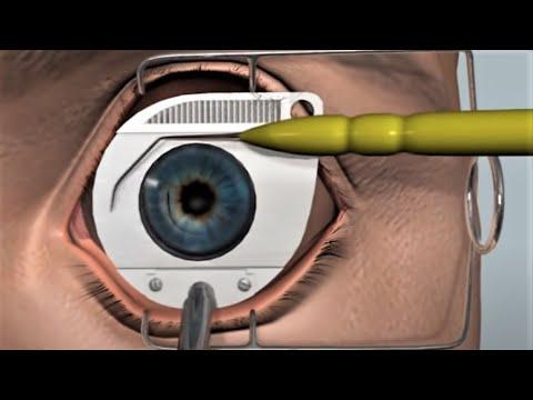 Lasik Surgery - 3D Medical Animation