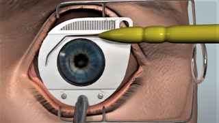 Lasik Surgery - 3D Medical Animation