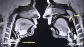 Científicos captan imágenes de MRI con pareja teniendo relaciones sexuales