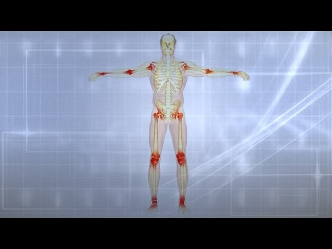 Joint Pain|Causes|Treatment|Prevention