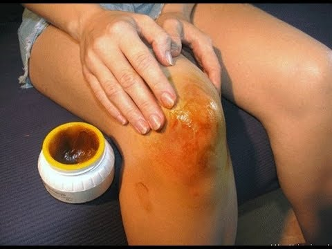 Народные рецепты от болей в суставах ног