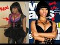 How did Nicki Minaj looked like before Plastic Surgery