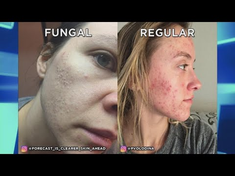 How is Fungal Acne Different Than Traditional Acne?