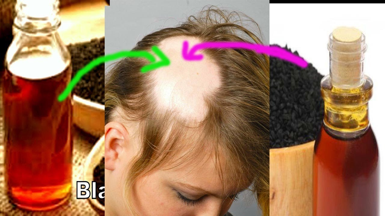Forum on this topic: How To Use Black Seed Oil (Kalonji) , how-to-use-black-seed-oil-kalonji/