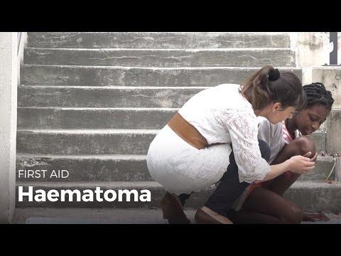 First Aid: Haematoma | First Aid