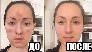 видео Элос омоложение, удаление пигментных пятен