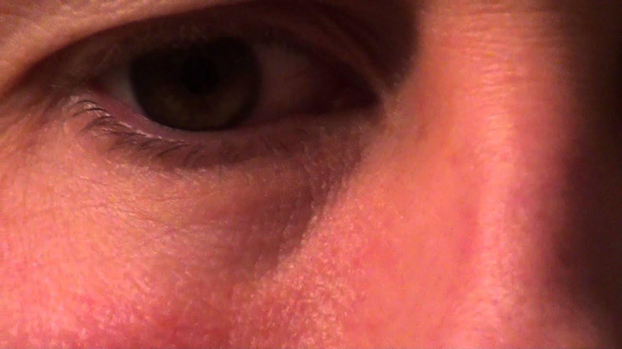 Red veins under eyes