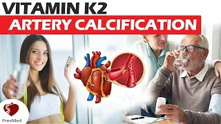 Vitamin K2 and Artery Calcification (Part 2): The Matrix Gla Protein