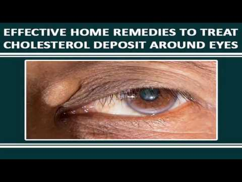 Warts Removal - Home Remedies | Health Tips from YouTube · Duration:  4 minutes 3 seconds