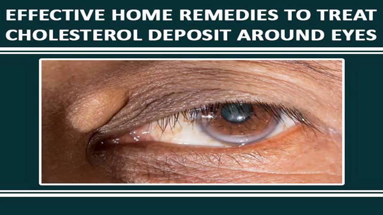Calcium Deposits Under Your Eyelid | Decorativestyle org