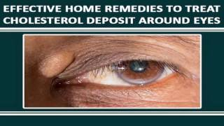 How To Treat Cholesterol Deposits Around The Eyes Naturally