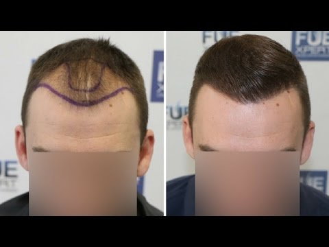 FUE Hair Transplant (2700 grafts in NW-Class lll-A) by Dr. Juan Couto - FUEXPERT CLINIC