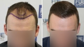 FUE Hair Transplant (2700 Grafts in NW-Class lll-A) Dr. Juan Couto - FUEXPERT CLINIC- Madrid, Spain