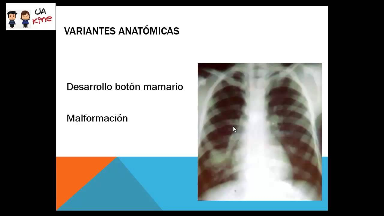 Radiografia de Torax - YouTube