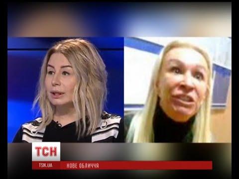 """Ганна Герман здивувала невдалою """"пластикою"""""""