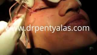 Blepharoplasty Surgery in India Thumbnail