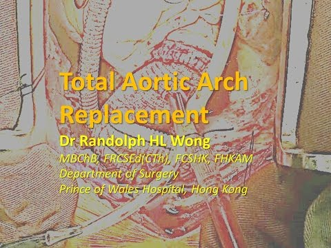 Total Aortic Arch Replacement, Dr Randolph HL Wong ,黃鴻亮醫生