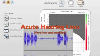 Hearing Loss - What it Sounds Like to Live This Way