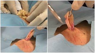 毛 巣 洞 手術