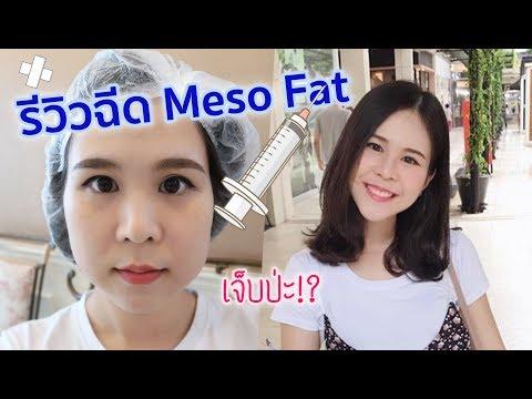 รีวิว ฉีดเมโสแฟต meso fat (fat contour) สำหรับคนแก้มเยอะ   EyePOLAR