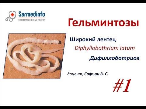 Гельминтозы #1 Широкий лентец  Дифиллоботриоз