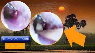 [ clip 28 ] 기름진 귀지가 Dr. 신체 건강 …
