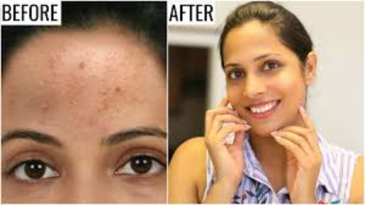 Acnezine Best Acne Treatment Review Youtube