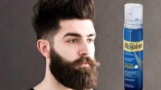 Minoxidil Beard Week 1: Side effects and progress.