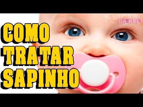 COMO ACABAR COM SAPINHO NA BOCA (candidíase Oral)