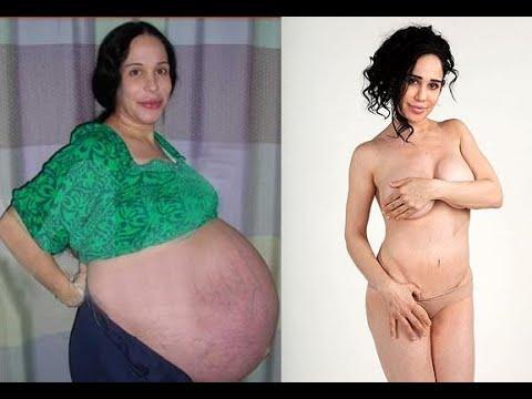 Cuerpo antes y despues del embarazo