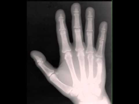 Hyperparathyroidism on Hands on X ray - YouTube