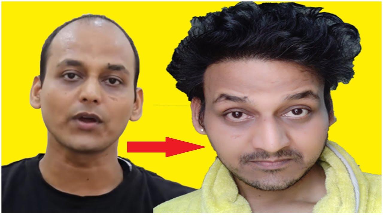 Hair Transplant Case Study {KABIR }  [Part 1] India (2020) My Full Details  Must Watch  #hairguide4u