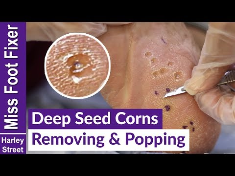 DEEP SEED CORNS REMOVING AND POPPING  BY MISS FOOT FIXER MARION YAU