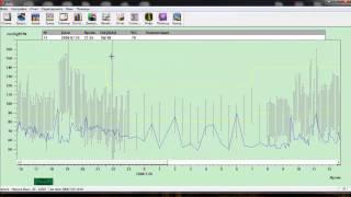 Мониторирование суточного артериального давления