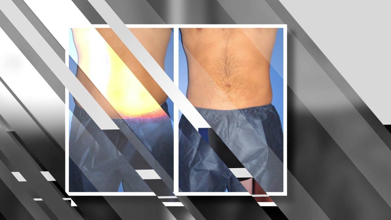 Abdomen Liposuction (Male Results) - Infini Phoenix Liposuction