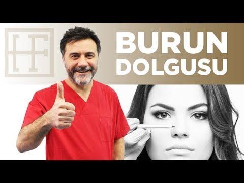 Burun Dolgusu | Op.Dr. Hasan FINDIK