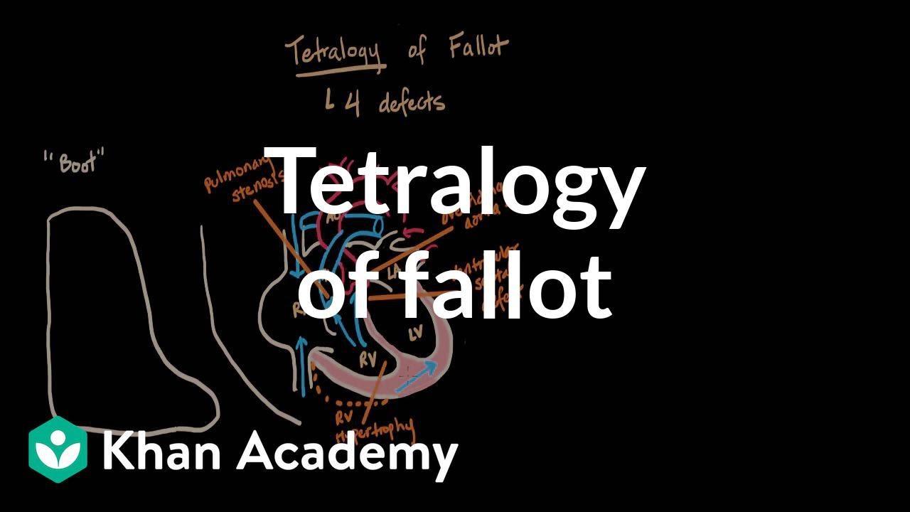 Tetralogy of fallot (video) | Khan Academy