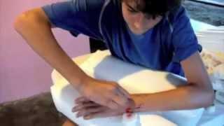 Braço Quebrado - Tirando os Pinos em Casa