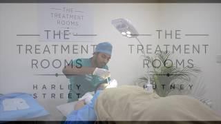 Hair Transplant Patient Journey Entertainment thumbnail