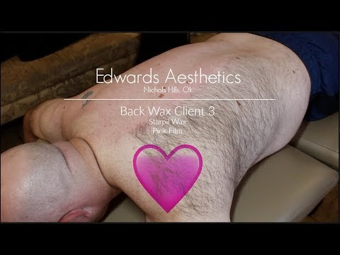 Edwards Aesthetics  Back Wax  Client 3  Starpil Pink