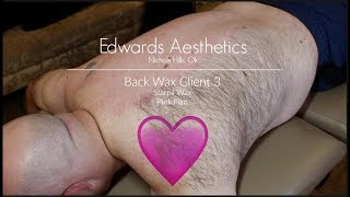 Baixar Edwards Aesthetics | Back Wax | Client 3 | Starpil Pink |
