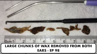 LARGE CHUNKS OF EAR WAX REMOVED FROM BOTH EARS - EP 98